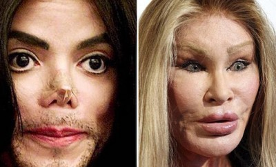cost-celebrity-plastic-surgery-disasters-0
